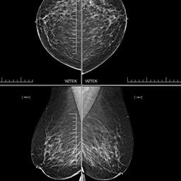 Icon Mammography Image